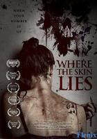 Where the Skin Lies full movie
