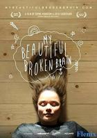 My Beautiful Broken Brain full movie